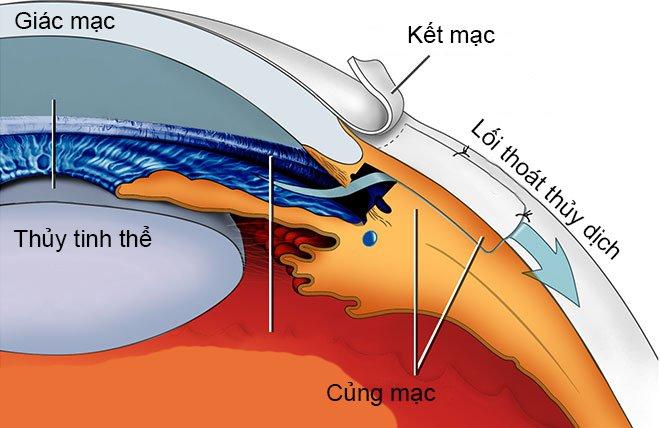 Mắt bị cườm nước có thể mổ cắt bè hoặc chiếu laser nhằm hạ nhãn áp nhanh chóng